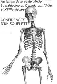 CONFIDENCES D'UN SQUELETTE et le livre « Au temps de la petite vérole. La médecine au Canada aux XVIIe et XVIIIe siècles »